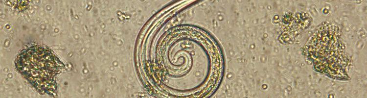 Fransk hjerteorm -en lumsk parasit