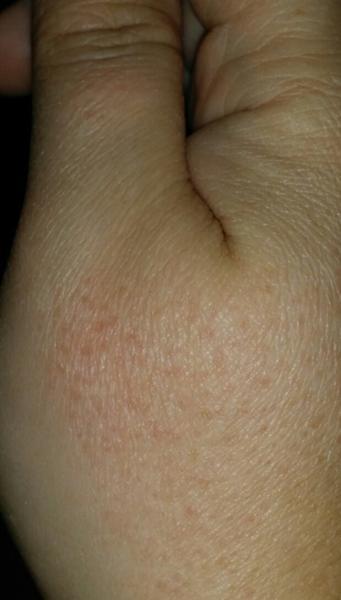 blodsprængninger på ben årsag